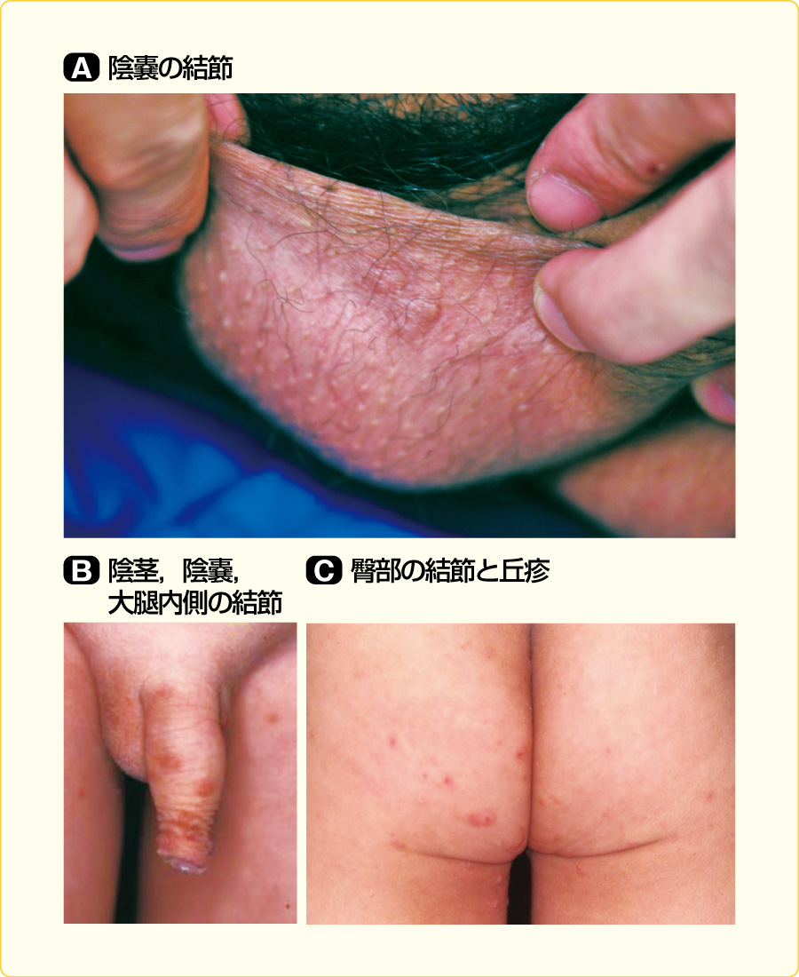 疥癬による結節