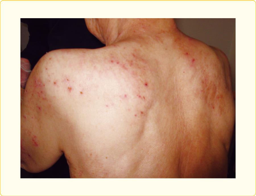 背部の散在する丘疹と掻破痕