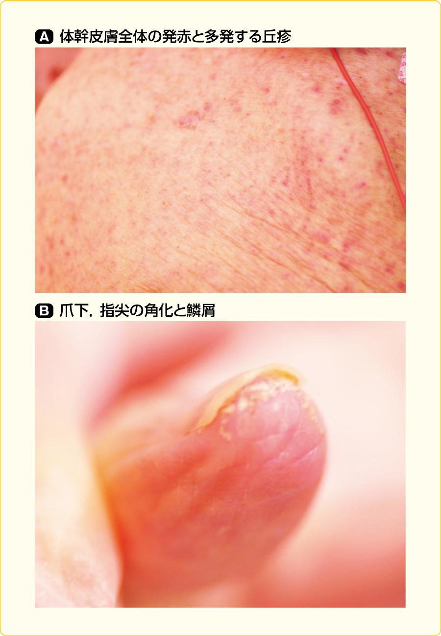 皮膚の発赤・丘疹,爪周囲の角化