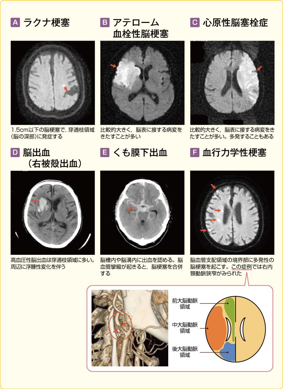 脳卒中の画像