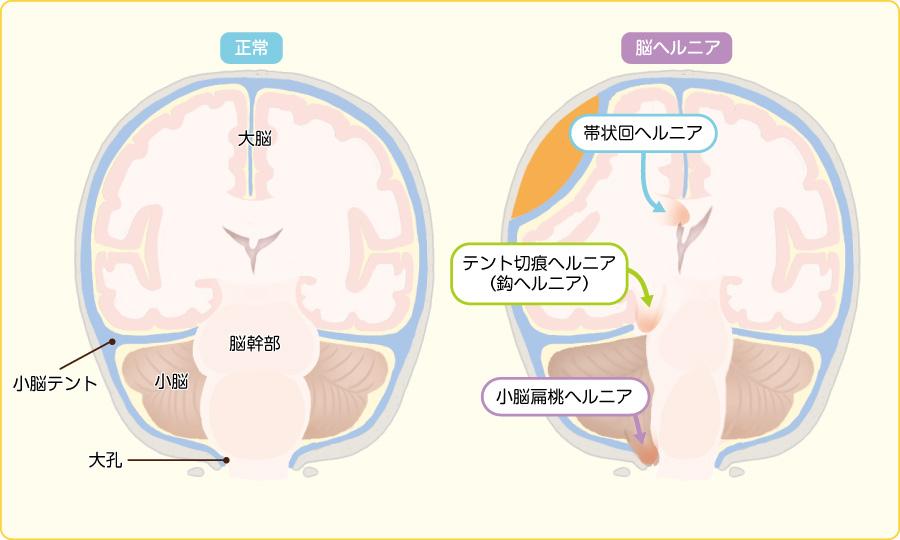 正常脳と脳ヘルニアの3つのタイプ