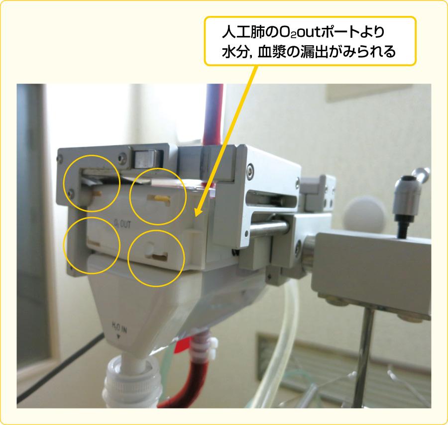 人工肺(ウェットラング,血漿リーク)