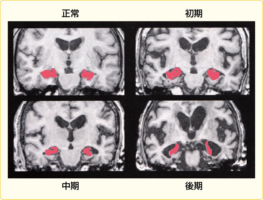 アルツハイマー病の頭部MRI画像