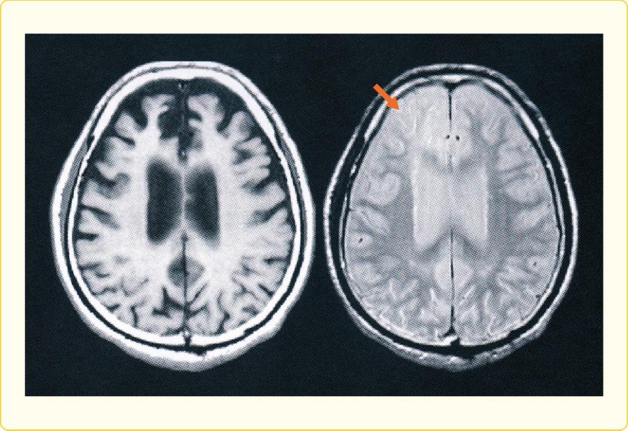 前頭側頭型認知症の頭部MRI画像