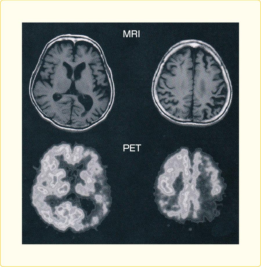 大脳皮質基底核変性症の頭部MRI,PET画像