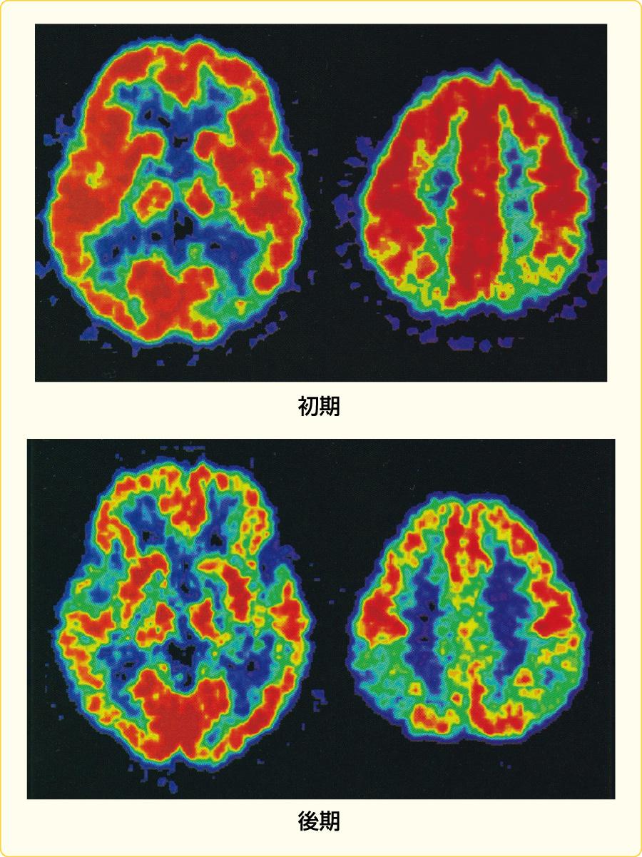 アルツハイマー病のPET画像