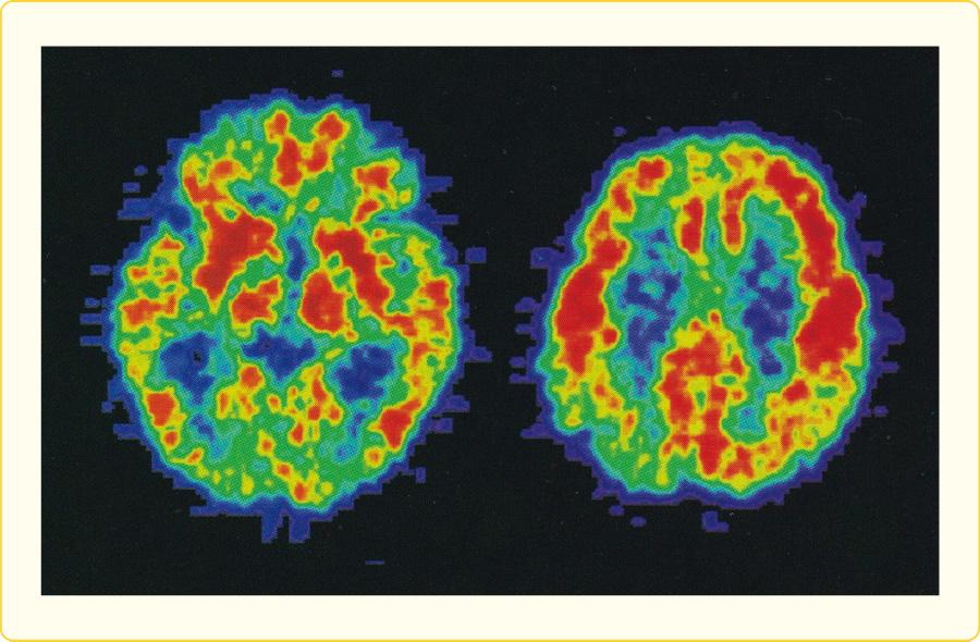 レビー小体型認知症のPET画像