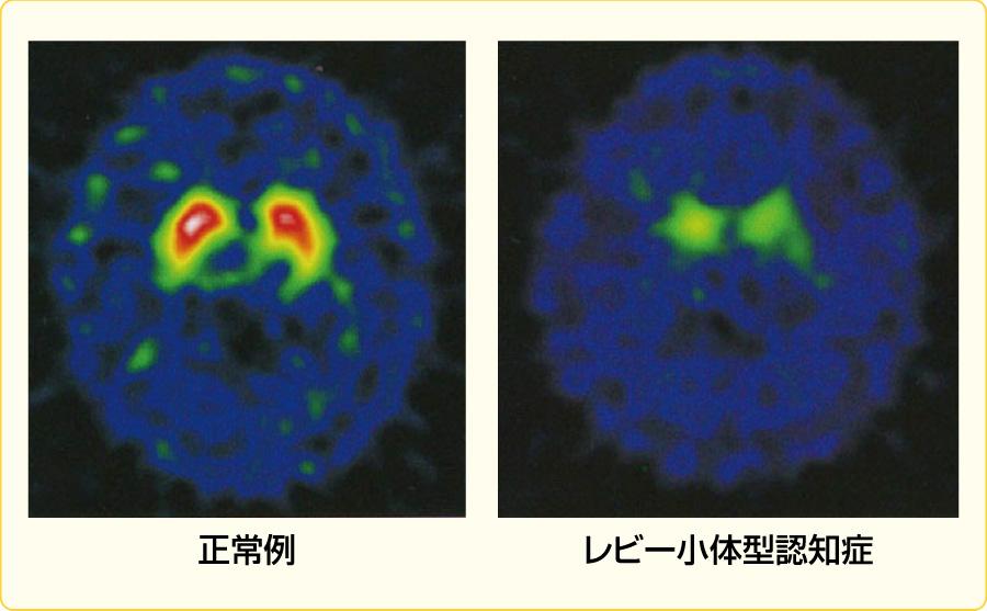 レビー小体型認知症のDATスキャン画像