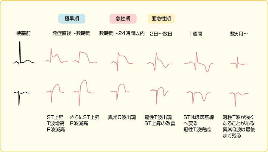 急性心筋梗塞の経時的心電図変化
