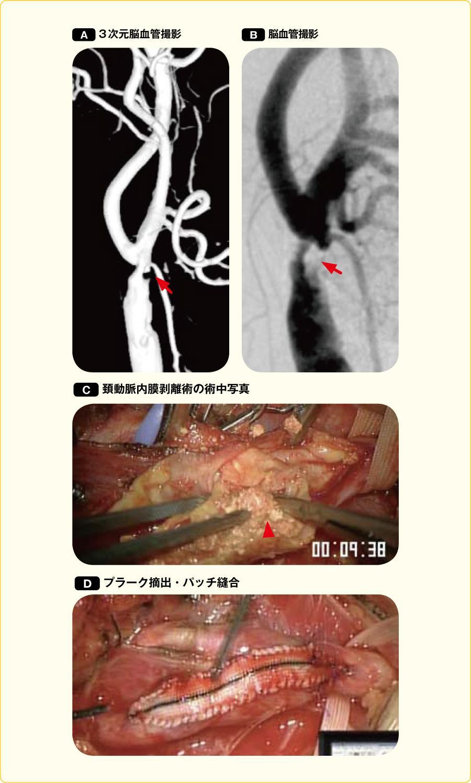頚動脈狭窄症