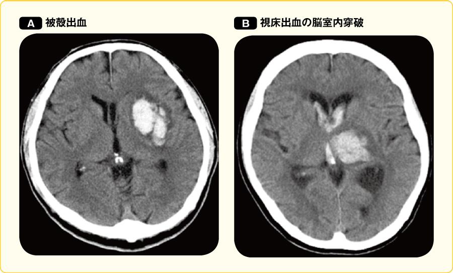 高血圧性脳出血