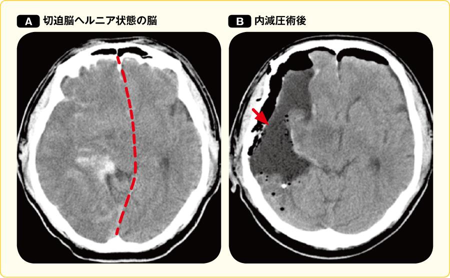 内減圧術を施行した切迫脳ヘルニア