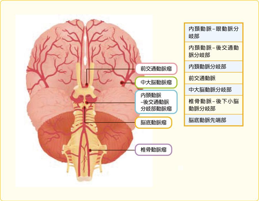 脳動脈瘤の好発部位