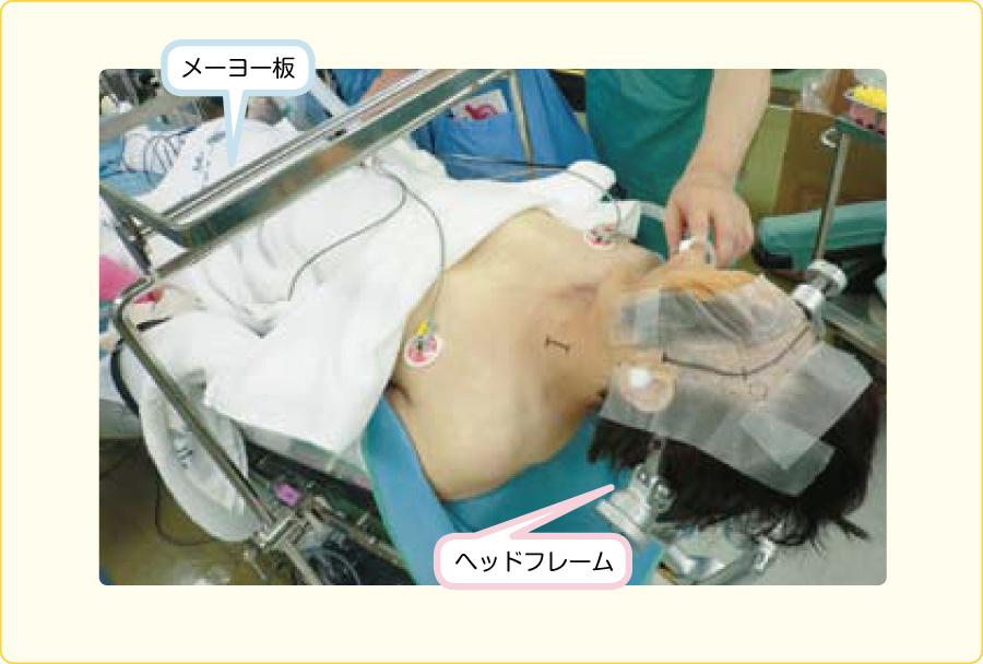くも膜下出血の手術ポジション