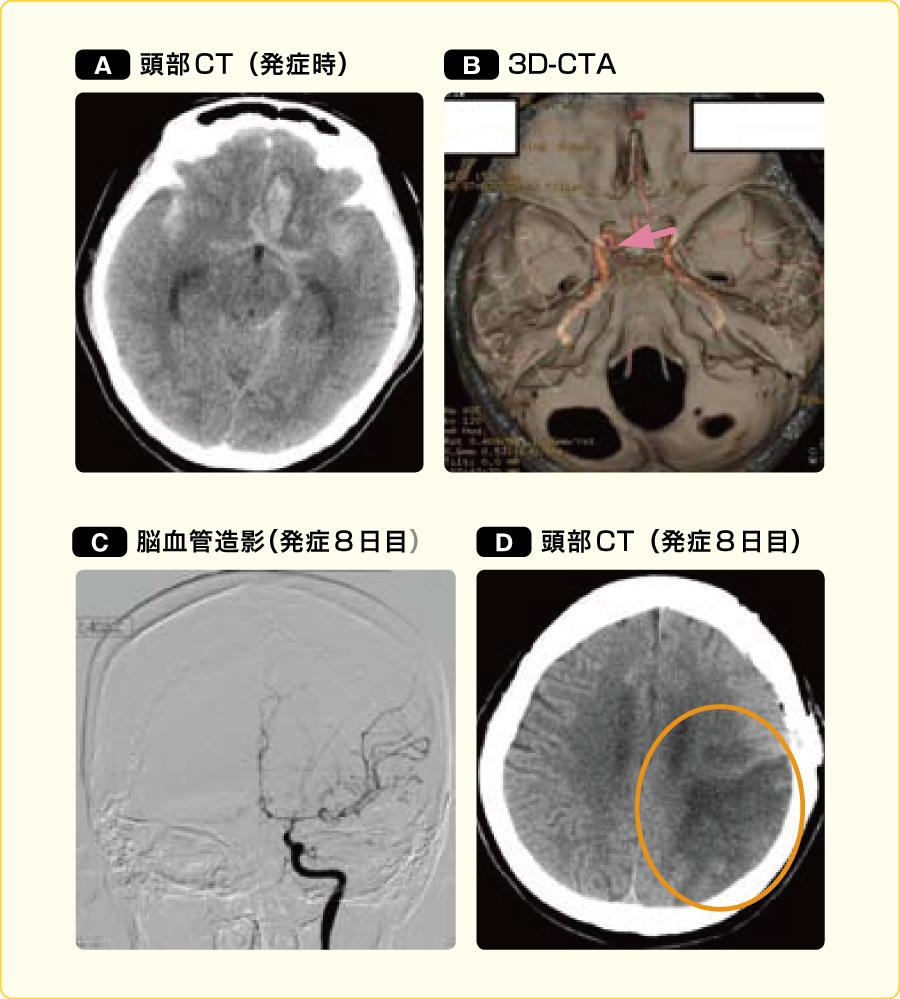 くも膜下出血の画像所見