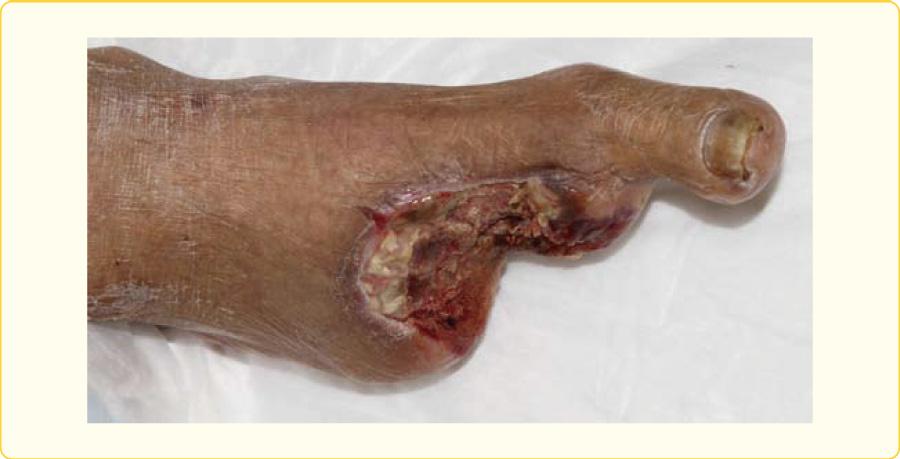 重症下肢虚血に対して2〜5中足骨切断術を施行した症例