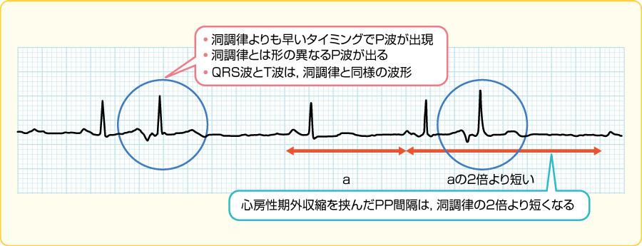 心房性期外収縮