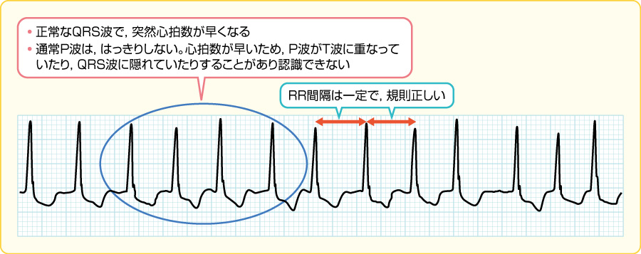 発作性上室性頻拍