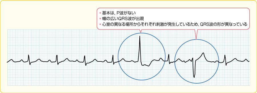 多源性の心室性期外収縮