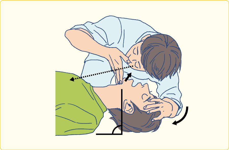 頭部後屈顎先挙上法