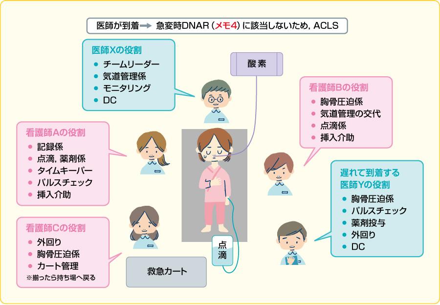 看護師3名(A・B・C)と医師2名(X・Y)によるACLS時の位置と役割分担