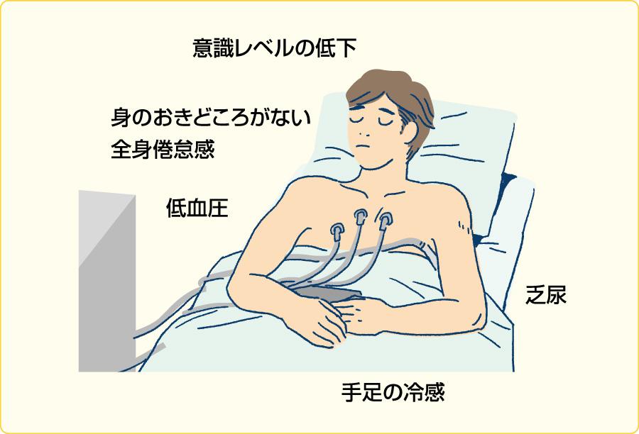 低心拍出症候群の患者像