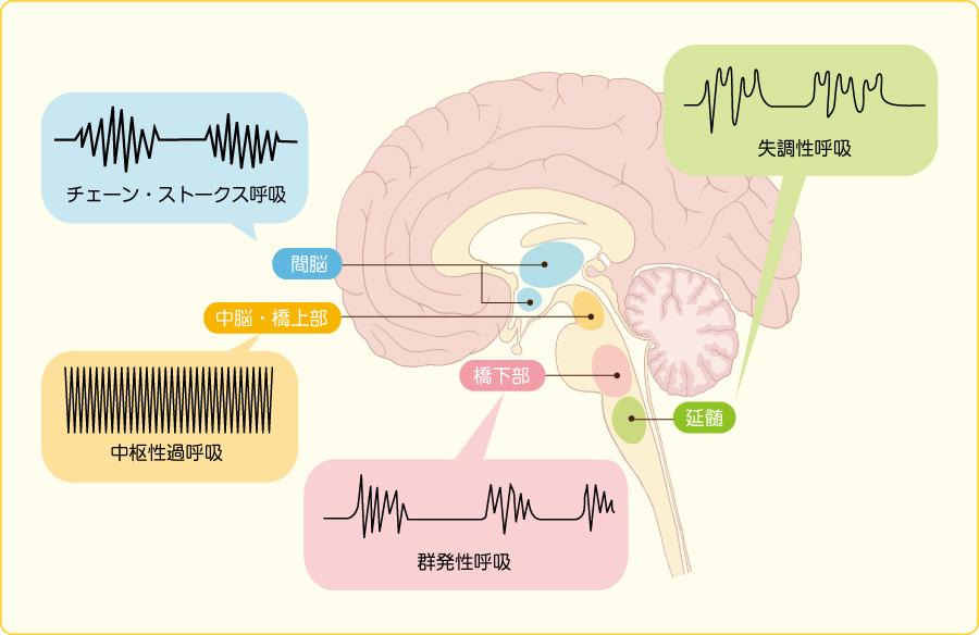 脳の障害と呼吸パターン