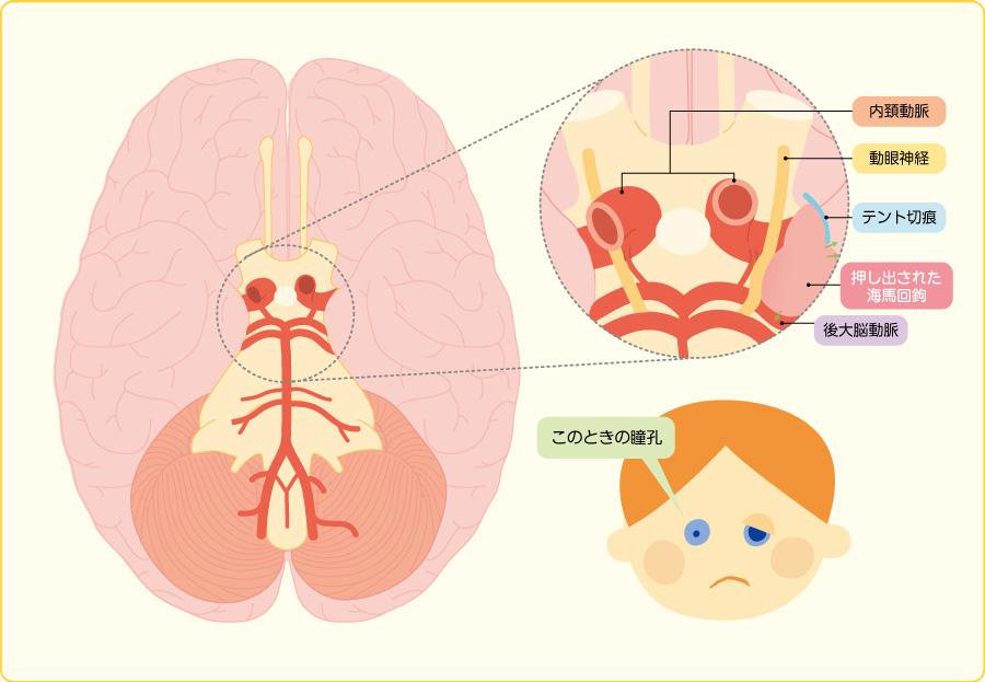 脳ヘルニアと瞳孔不同