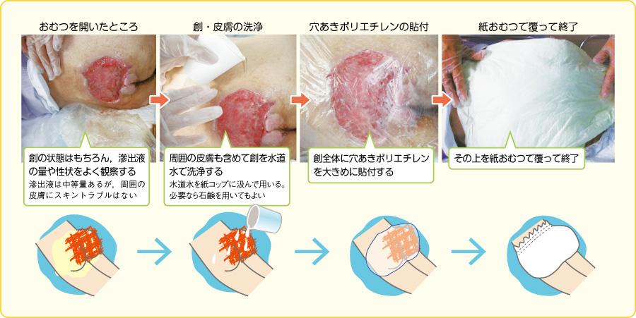 ラップ療法の手順(仙骨部褥瘡)