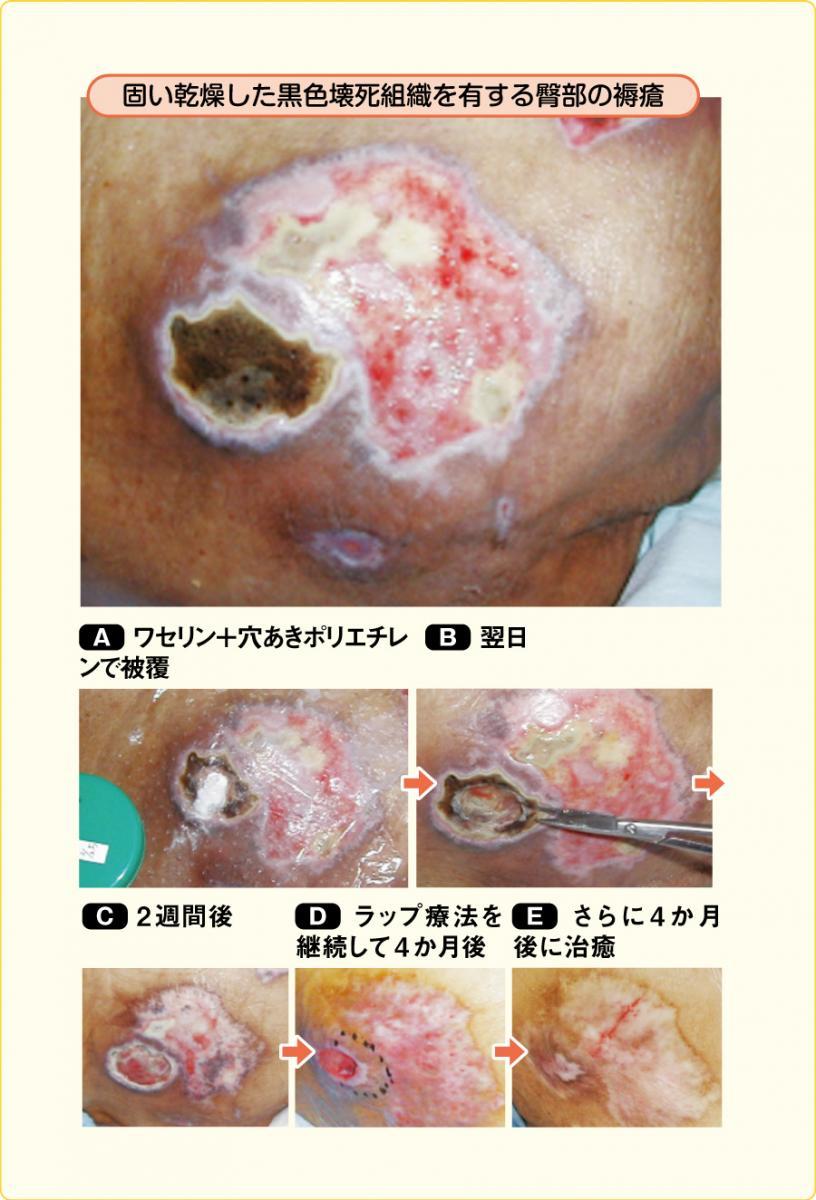 固い乾燥した黒色壊死組織を有する褥瘡に対するラップ療法の応用