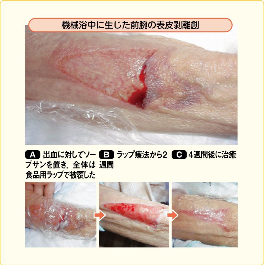 表皮剥離創に対するラップ療法の応用