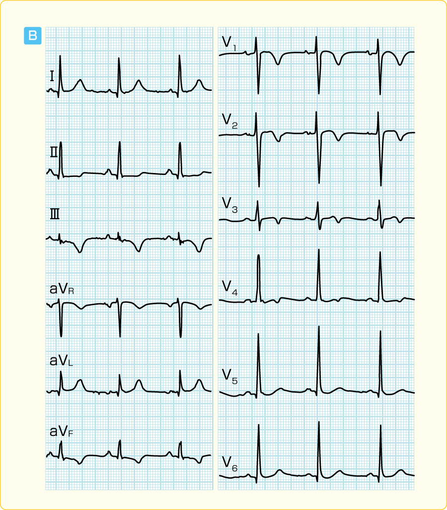 WPW症候群(B型)のカテーテルアブレーション前後の心電図