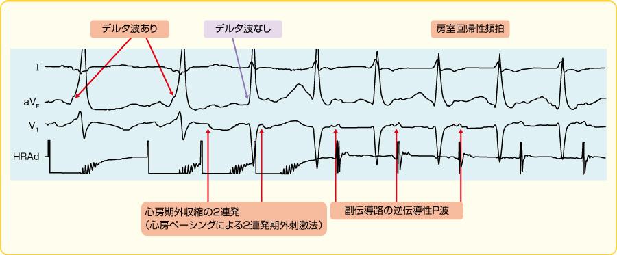心房期外収縮で開始した房室回帰性頻拍
