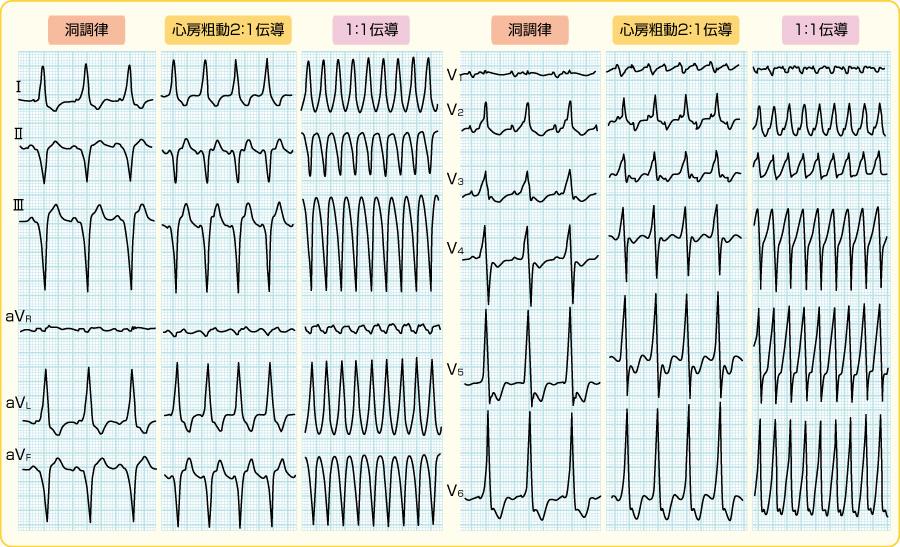 顕性WPW症候群の心房粗動発作(図14と同一例)