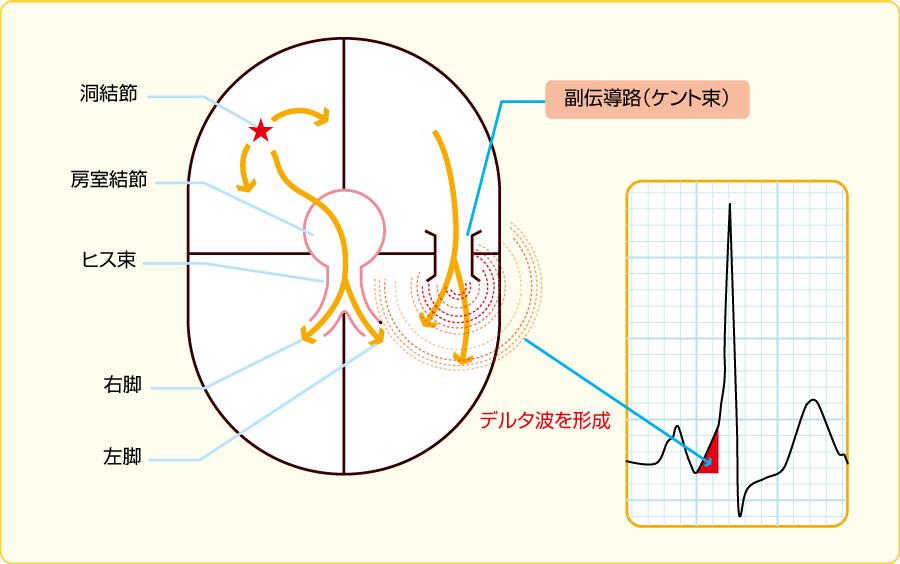 副伝導路(ケント束)とデルタ波の成因