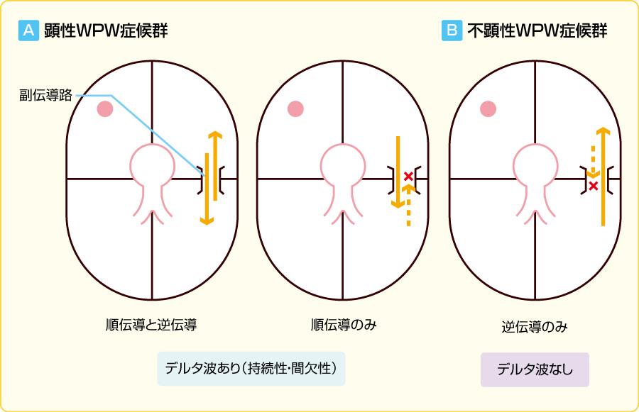 副伝導路伝導の方向性と顕性および不顕性WPW症候群