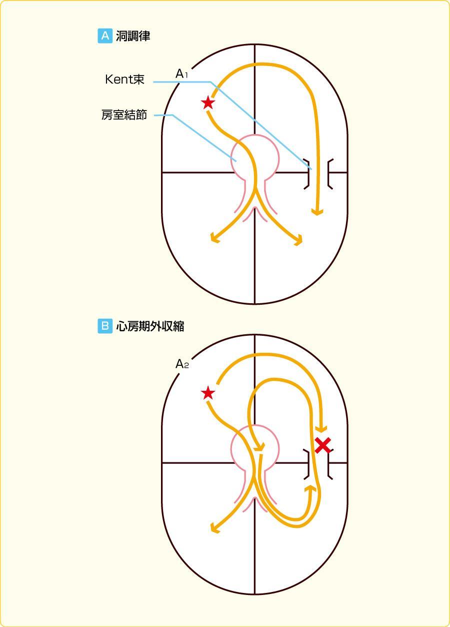 WPW症候群の発作性上室頻拍である房室回帰性頻拍