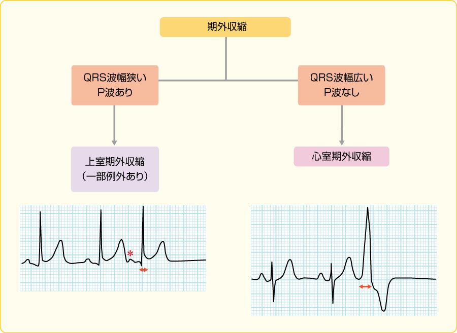 期外収縮の波形の鑑別
