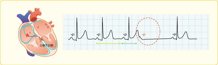 非伝導性心房期外収縮