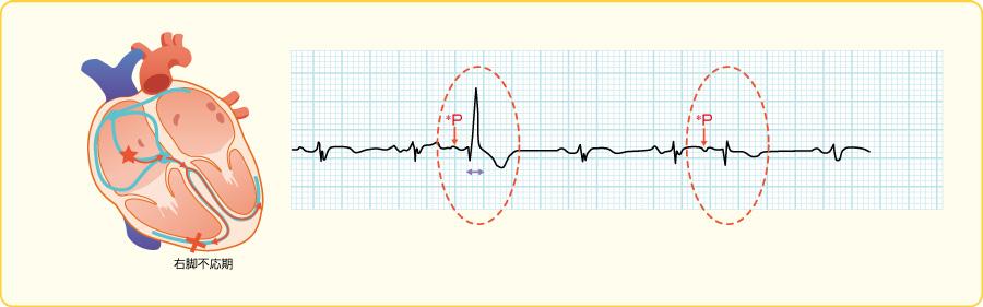 心室内変更伝導を伴った心房期外収縮