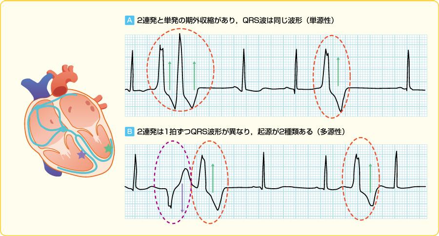 単源性・多源性心室期外収縮