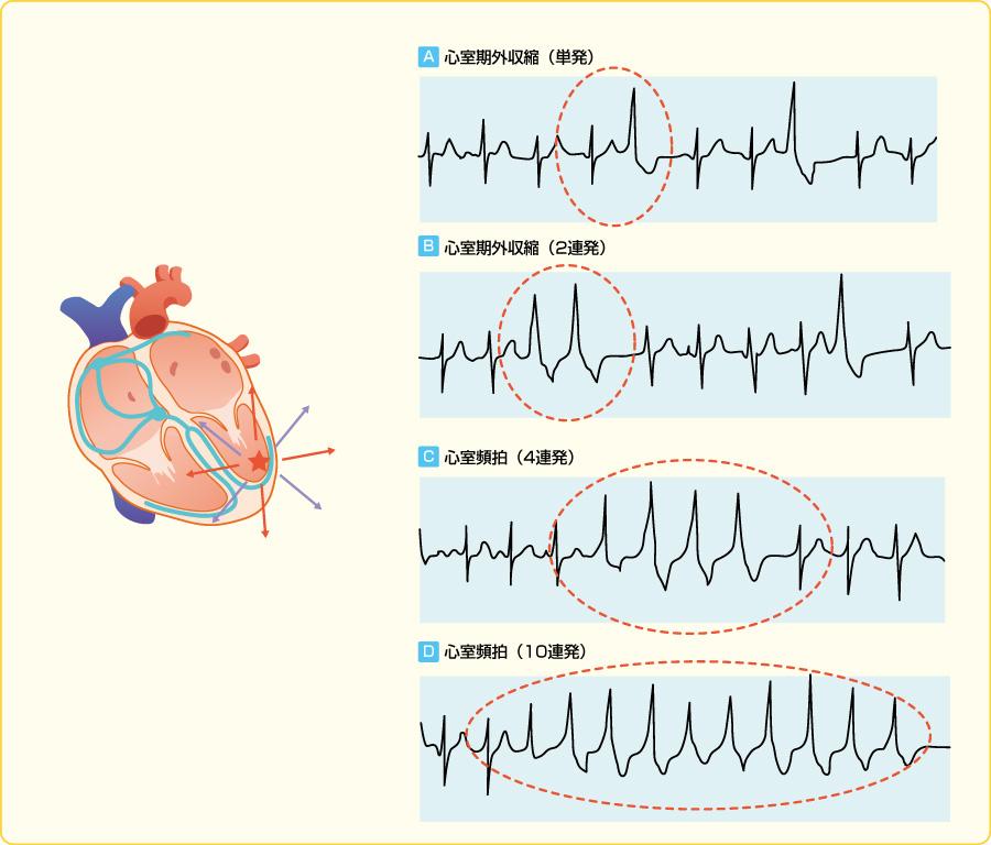 反応性心室期外収縮