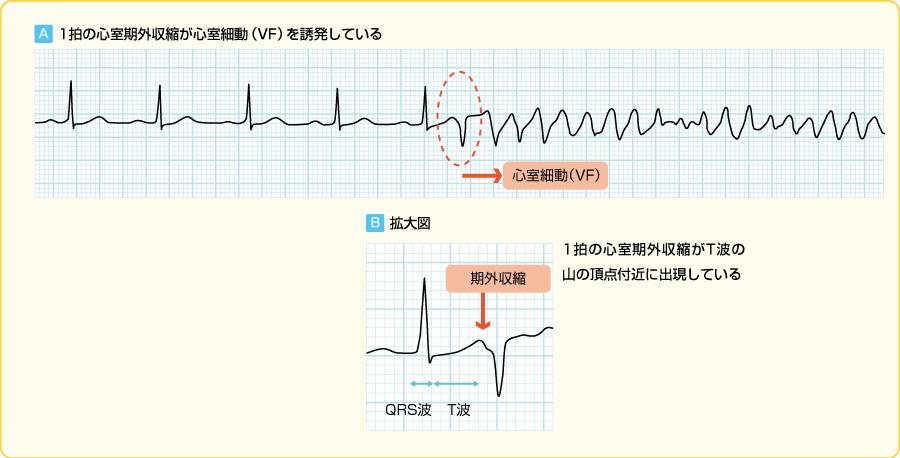 R on T型の心室期外収縮