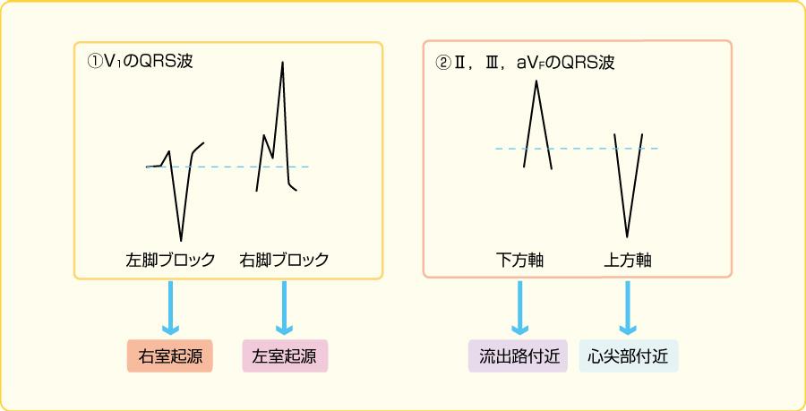 心室期外収縮の起源の同定