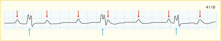 3度(完全)房室ブロック−心室補充調律