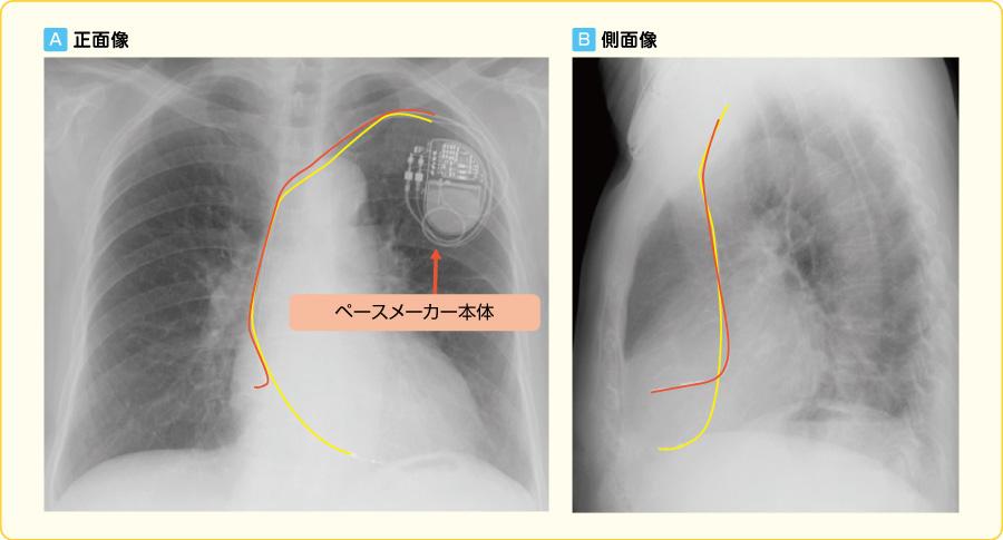 恒久式ペースメーカー植込み後の胸部X線写真