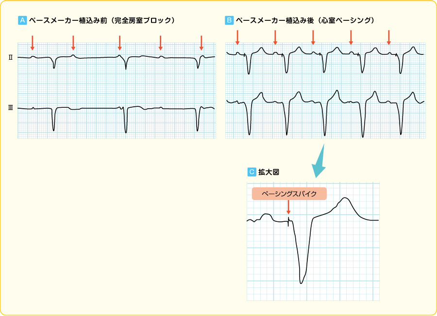 ペースメーカー植込み前後の心電図
