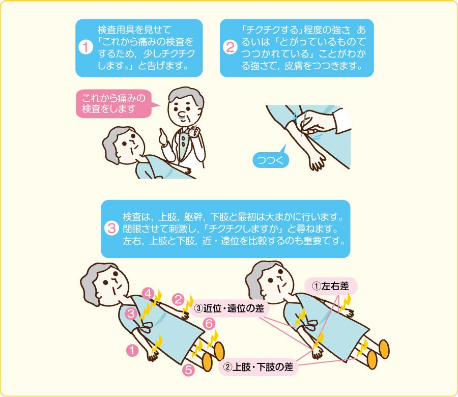 四肢・躯幹の痛覚の検査