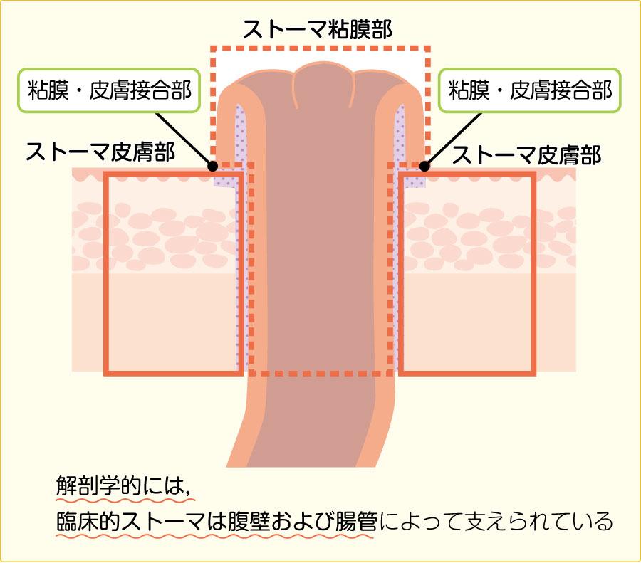 臨床的ストーマの構成(矢状面,水平面)