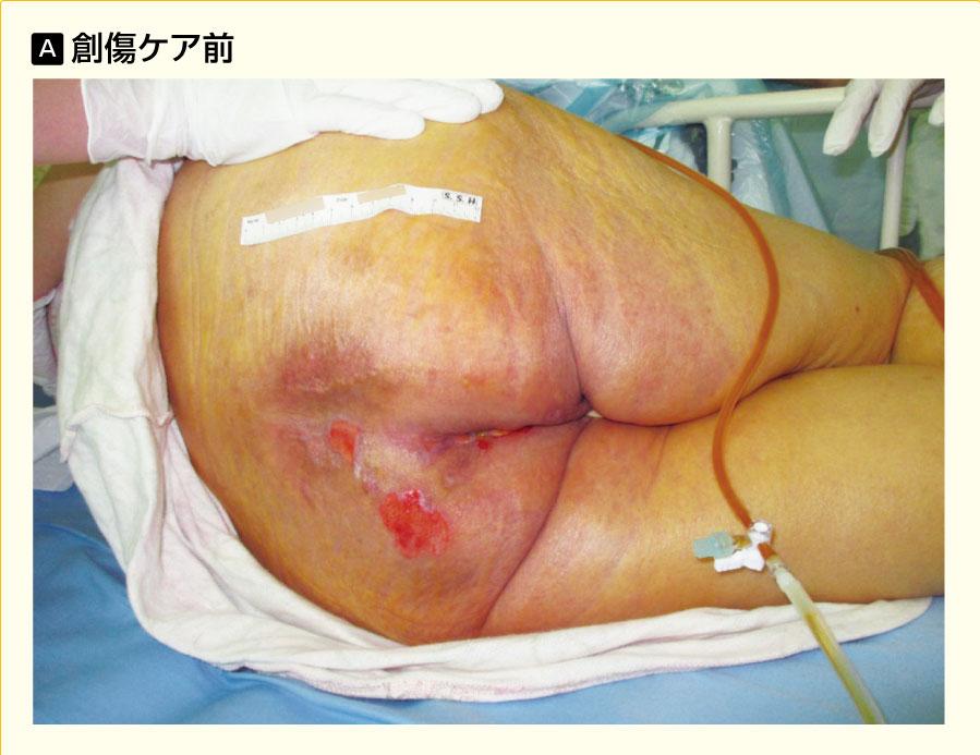 粉状皮膚保護剤による創傷ケア
